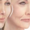 Basics of Facial Fillers