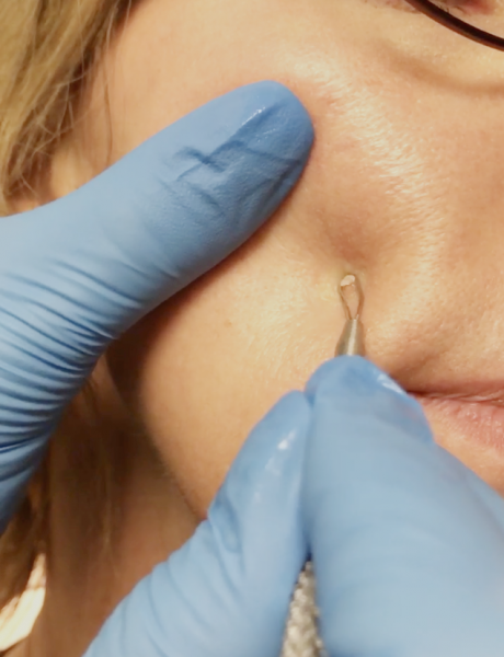 Pore Extractions